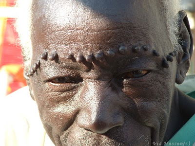 scarification sudan vit hassan